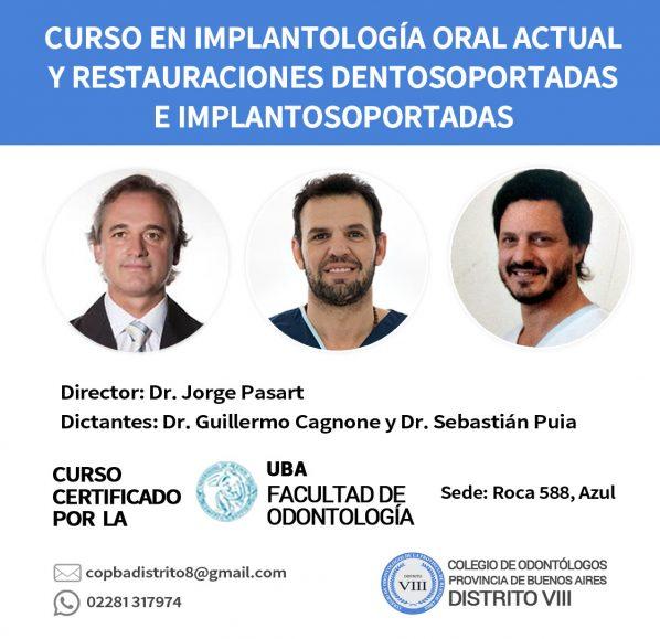 Curso en Implantología Oral Actual y Restauraciones Dentosoportadas e Implantosoportadas