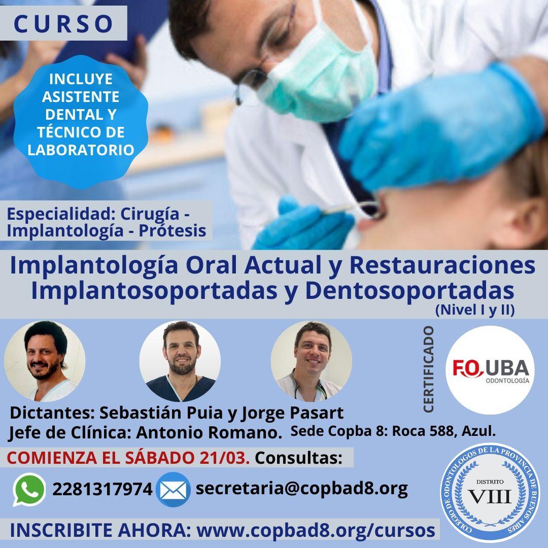 Implantología Oral Actual y Restauraciones
